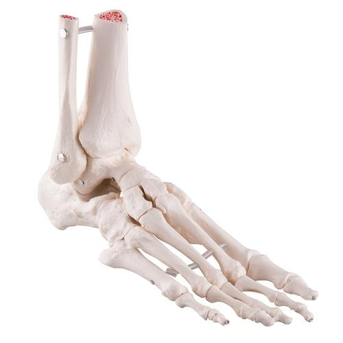Fußskelett, mit Schienbein- und Wadenbeinstumpf